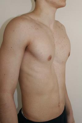 как выглядит грудь сапожника