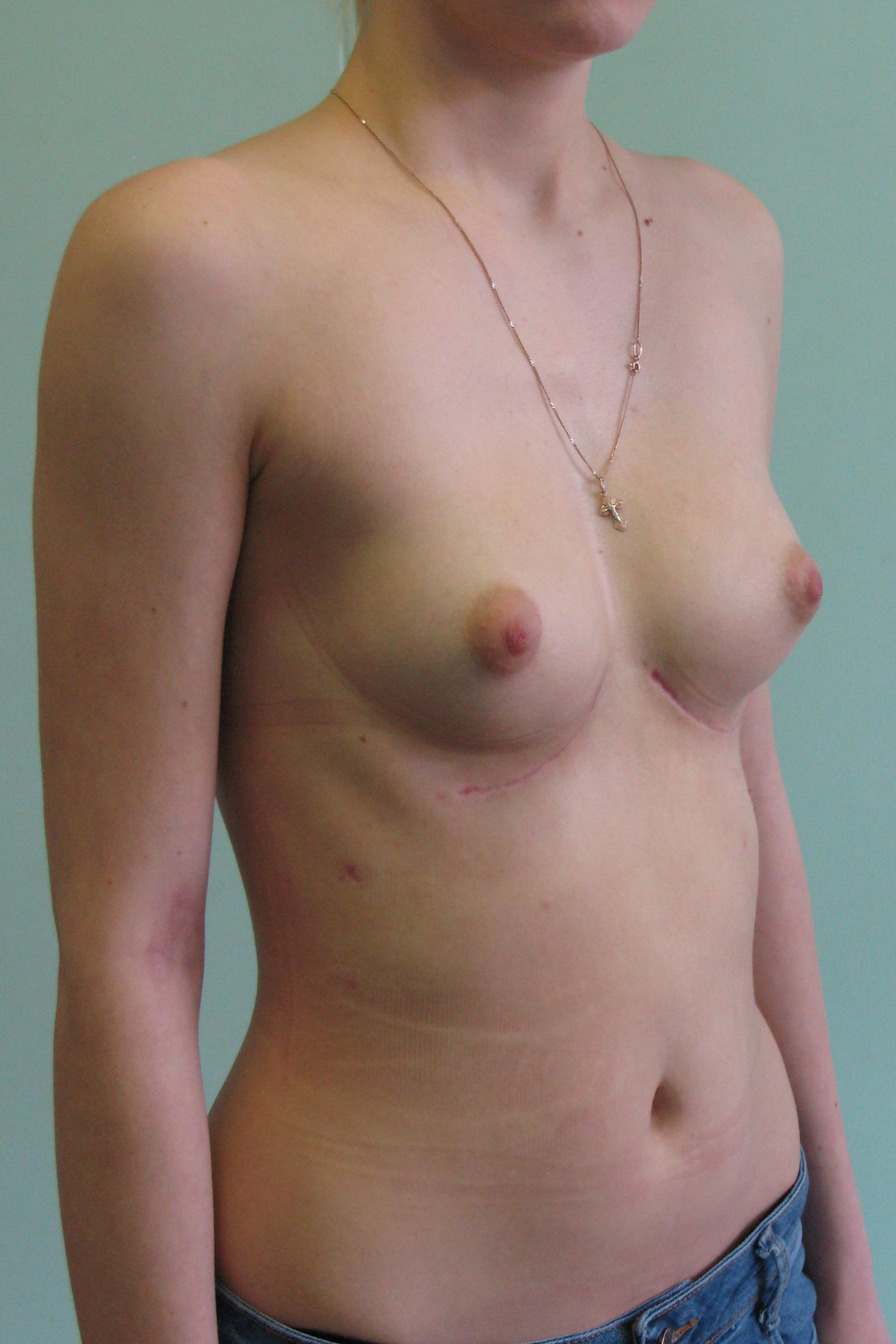 Самые лучшие упражнения для увеличения груди