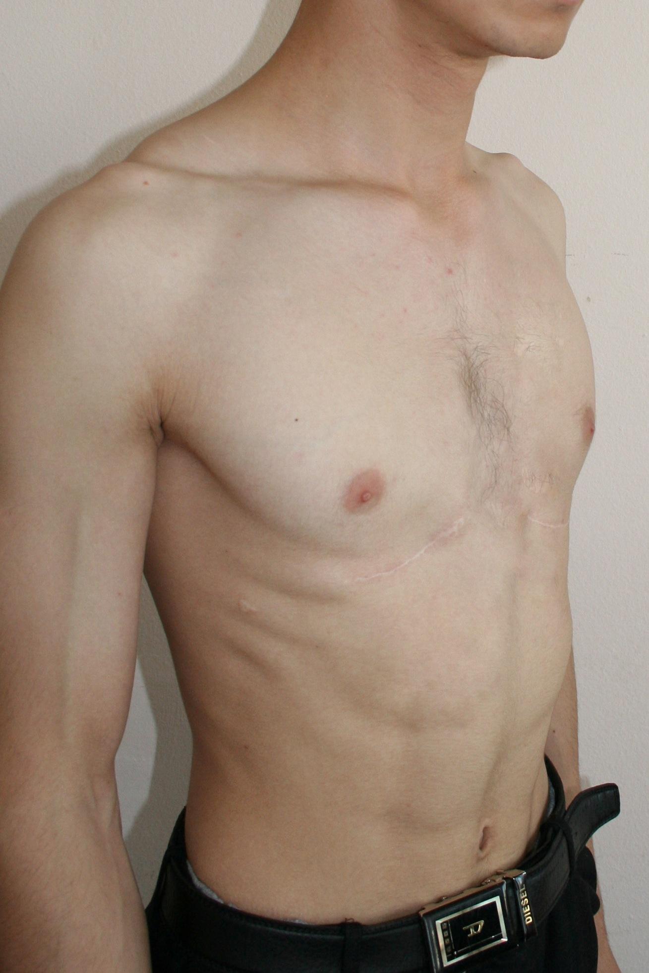 Фото грудины человека 23 фотография