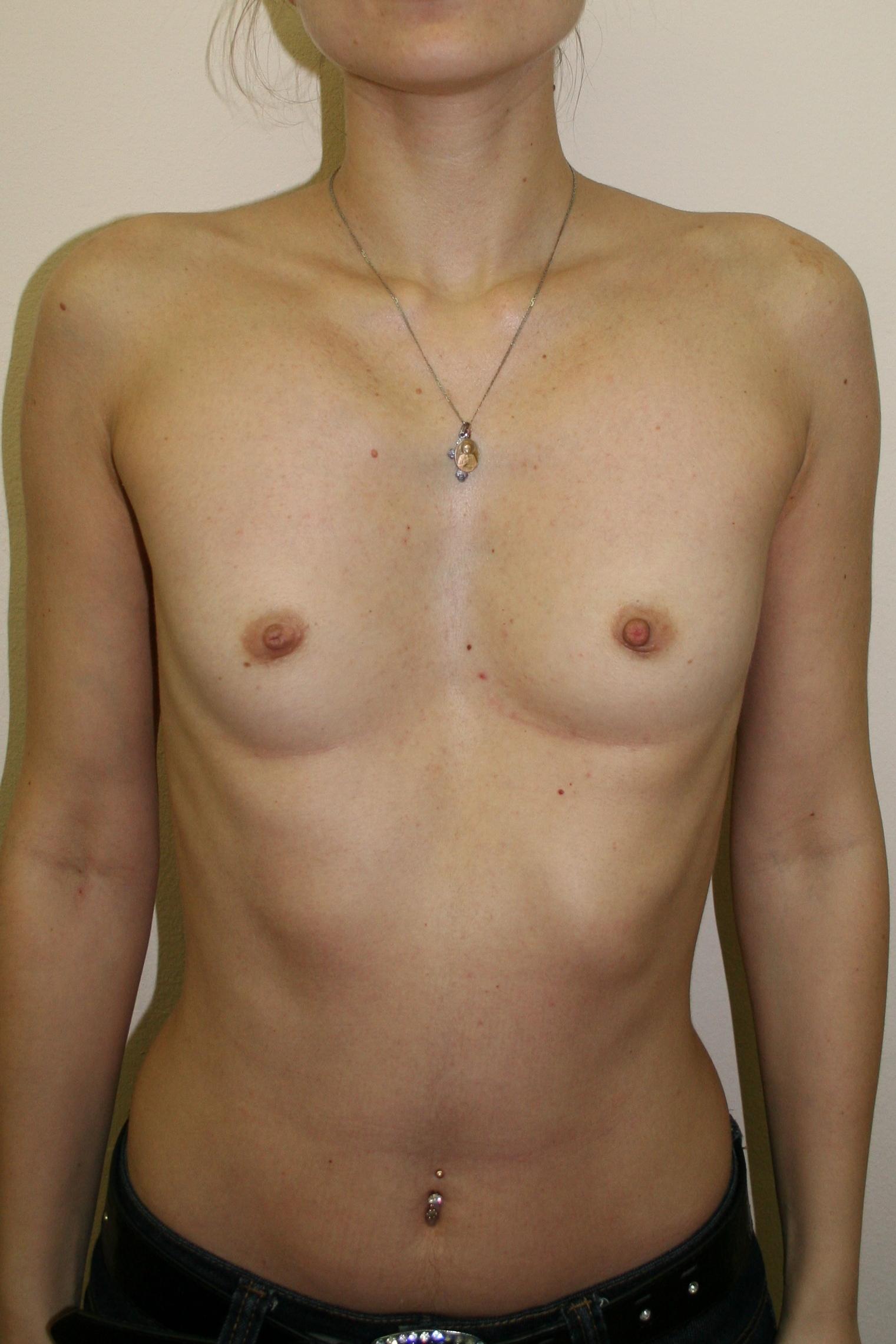 Импланты для груди 420 мл